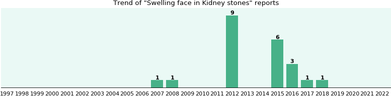 Would you have Swelling face when you have Kidney stones?