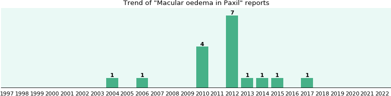 Could Paxil cause Macular oedema?